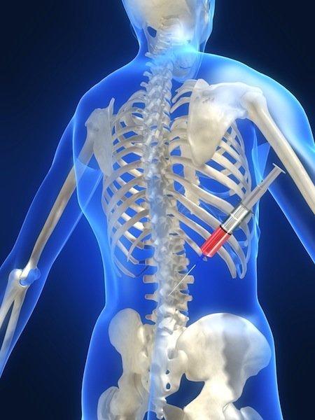 Infiltración epidural, el dolor, la cortisona, drogas, medicamentos, ventiladores, anti-inflamatorio