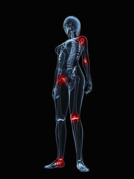 articulaciones, inflamación, diferentes, múltiple, dolor, daño, limitación, funcional, artritis