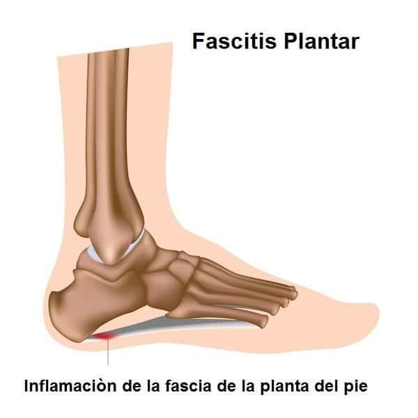 fascitis plantar dolor, inflamación