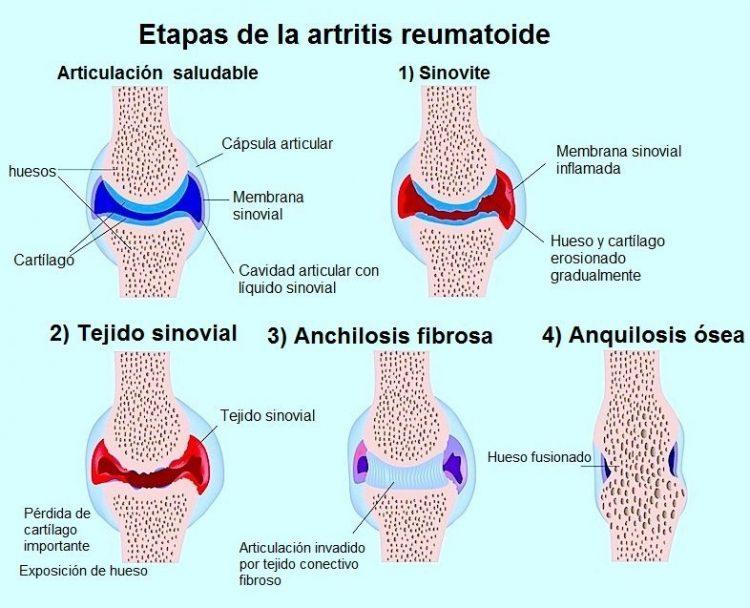 etapas de la artritis