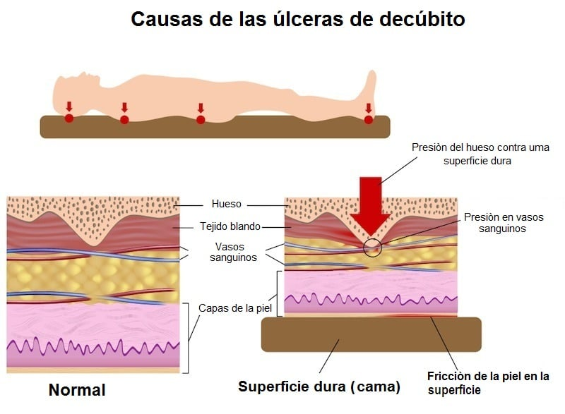Colchon recomendado para dolor de espalda caracteristicas especial - Colchones para dolor de espalda ...