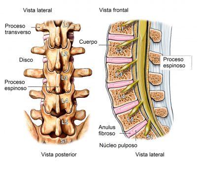 dolor de espalda, lumbalgia
