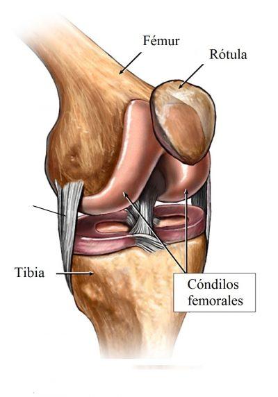Rotura del ligamento colateral interno, rodilla, esguince