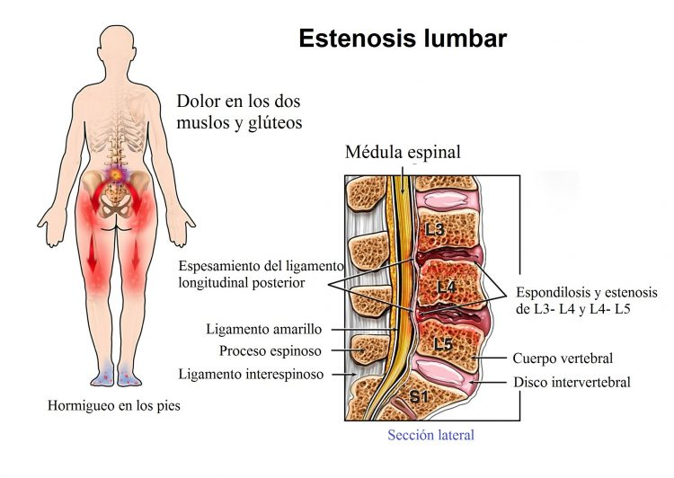 estenosis lumbar