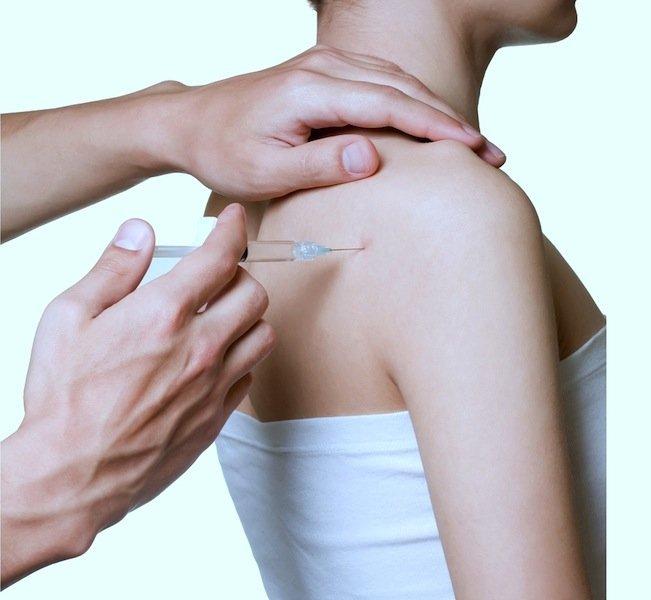 Inyección, injection, cortisona, hombro, infiltración, anti, inflamatorio, dolor
