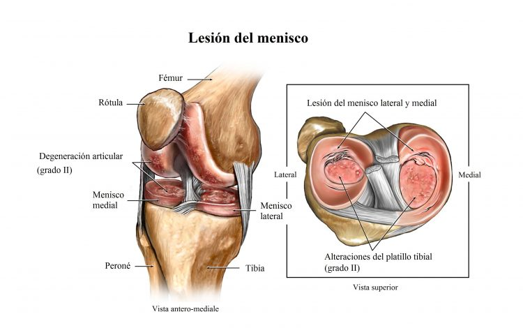 lesion del menisco