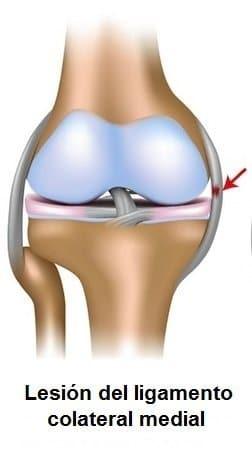 ligamento colateral medial, dolor, lesión, breaking bad, la inestabilidad, la inflamación, esguinces,