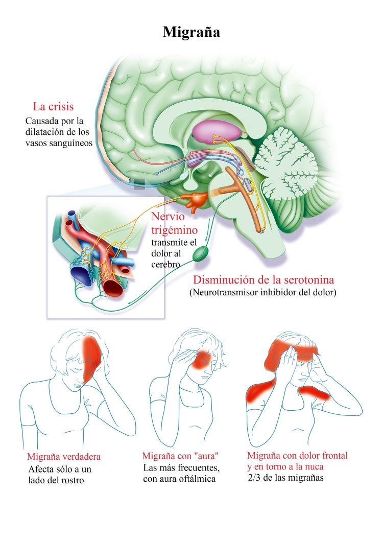 migrana, dolor de cabeza
