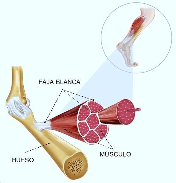 músculos, lesión ,mioglobina, huesos, tendones, estructura, anatomía