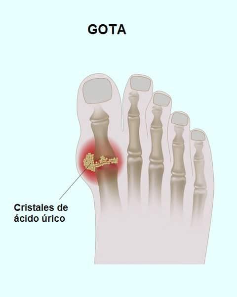 Gota, acumulación, cristales, ácido, úrico, articulación, artritis, dedo gordo del pie
