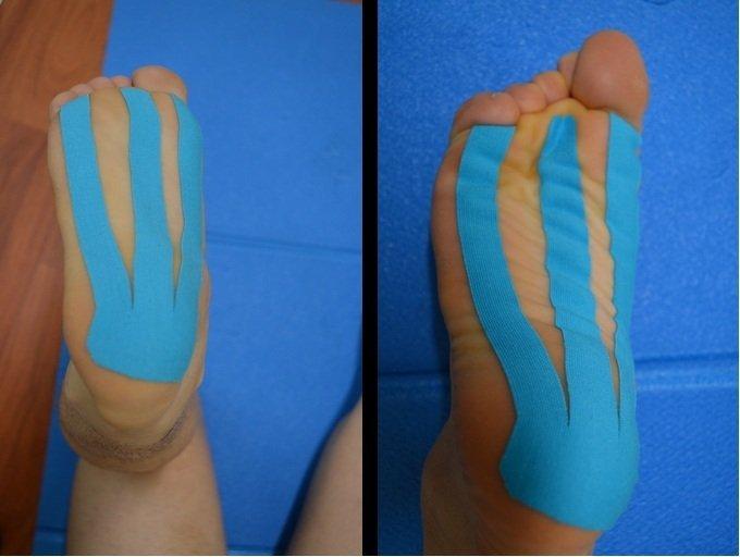 Kinesio, taping, fascite, plantilla, inflamación, tendinitis, dolor, alivio, aplicación