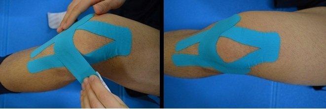 vendaje neuromuscular, tendinitis, rodilla, dolor, arruga
