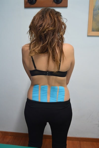 dolor de espalda, kinesiotape