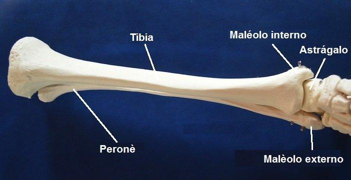 tibia, el peroné, fractura, hueso, lesión, dolor, mucho, el astrágalo, el pie, la pierna