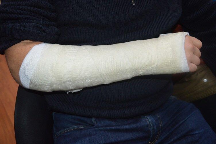 yeso, cúbito, fractura, inmovilización, de bloqueo, el movimiento, el dolor