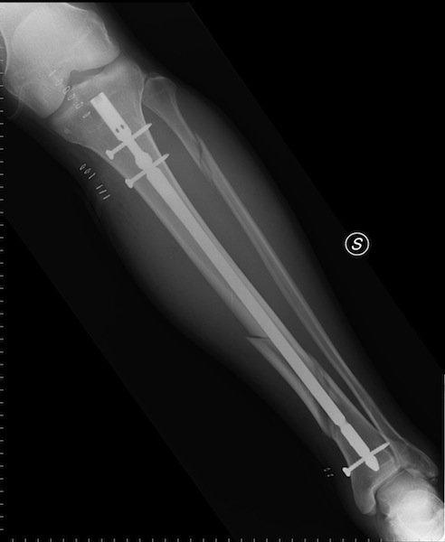 uñas, tornillos intramedulares, diáfisis de tibia, fractura, de rayos x, dolor, lesión