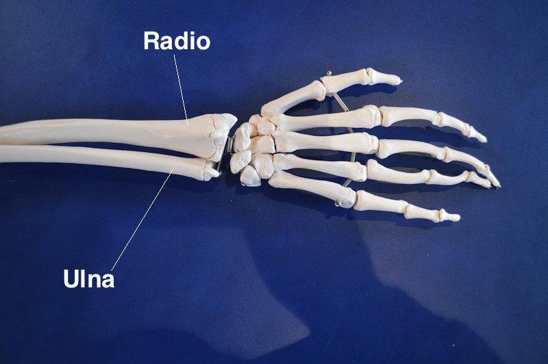muñeca, radio, cúbito, fractura, modelo, anatomía, mano, antebrazo, rotura