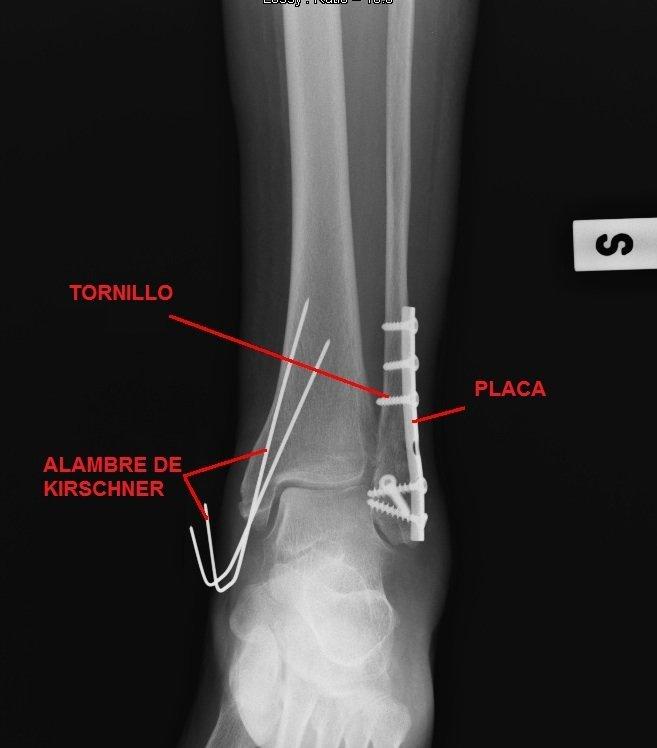 intervención quirúrgica, la placa, tornillos, alambres de Kirschner, el transporte, la síntesis, la fractura, tibia