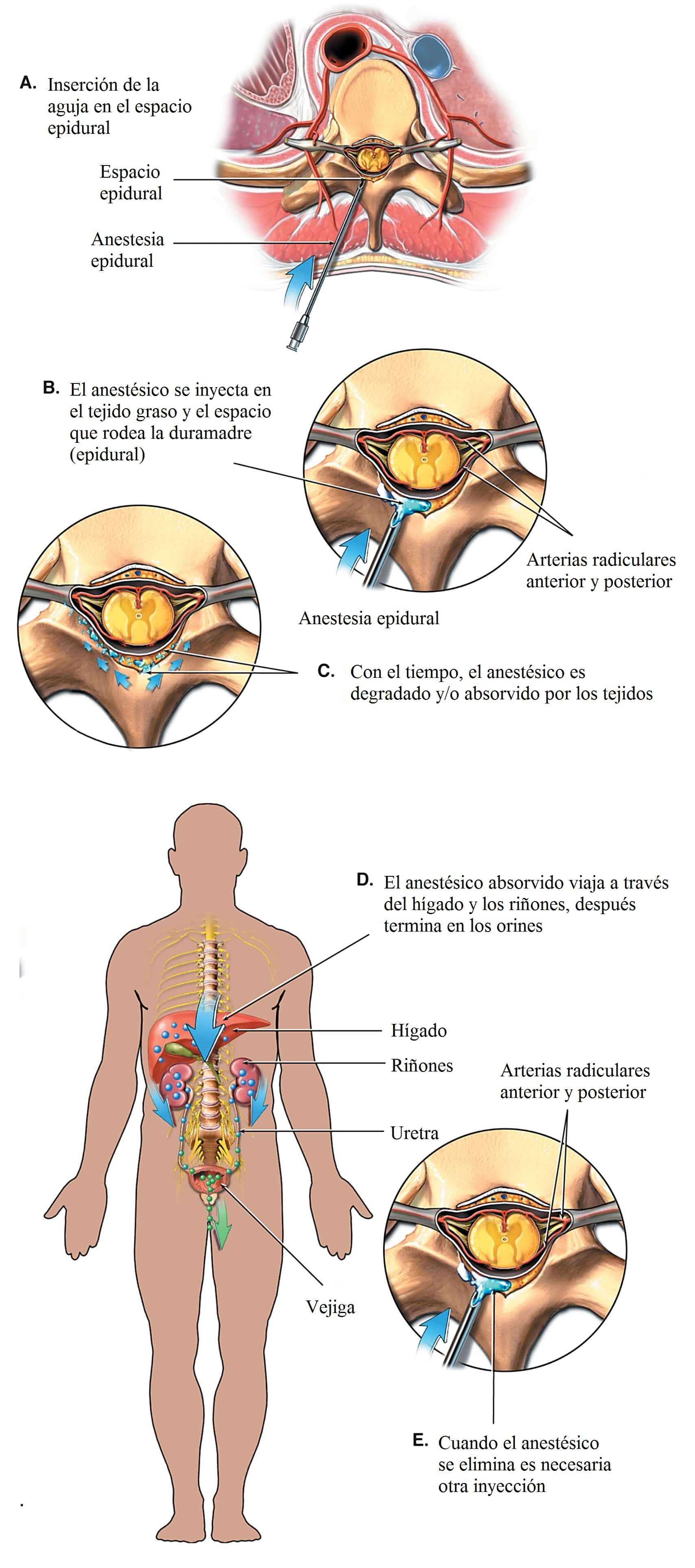 anestesia-epidural-local-general