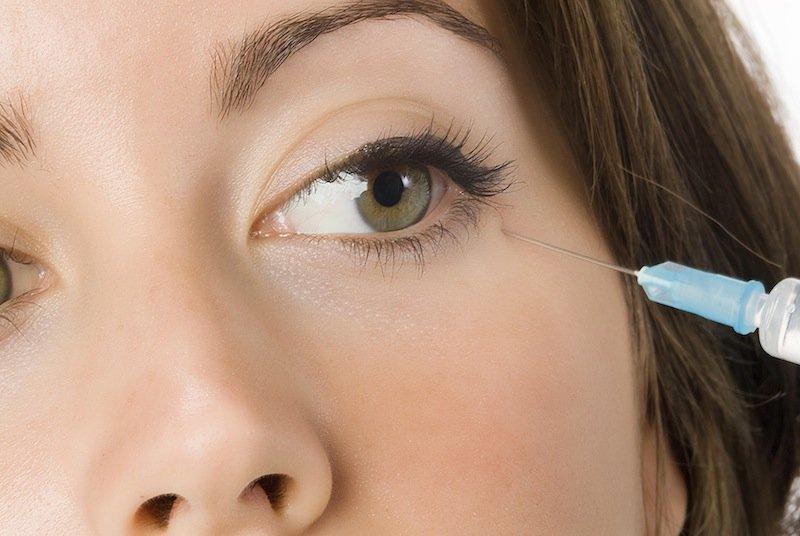 inyección, fillers, ácido, ialuronico, de relleno, patas, gallina, ojos, contorno, labios, alteraciones estéticas