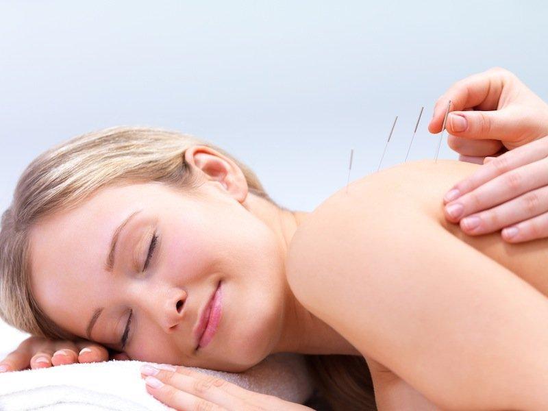 acupuntura, terapia, alterantiva, natural del hombro congelado, dolor de hombro, cura, el movimiento