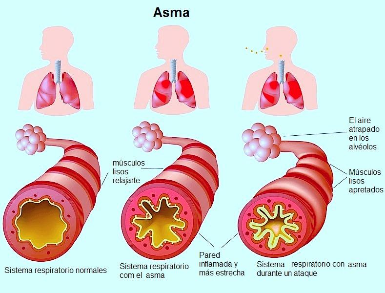 el asma, la respiración, fatiga, ventolin, alvéolos, bronquios, pulmones, las calles, la respiración, los músculos, los contratos