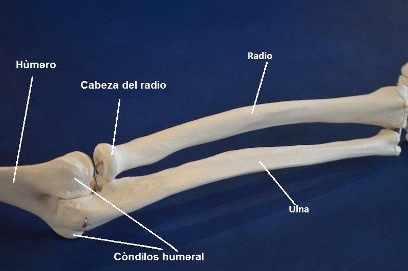 capital, radial, cubital, hueso, fractura, dolor, inflamación, lesión
