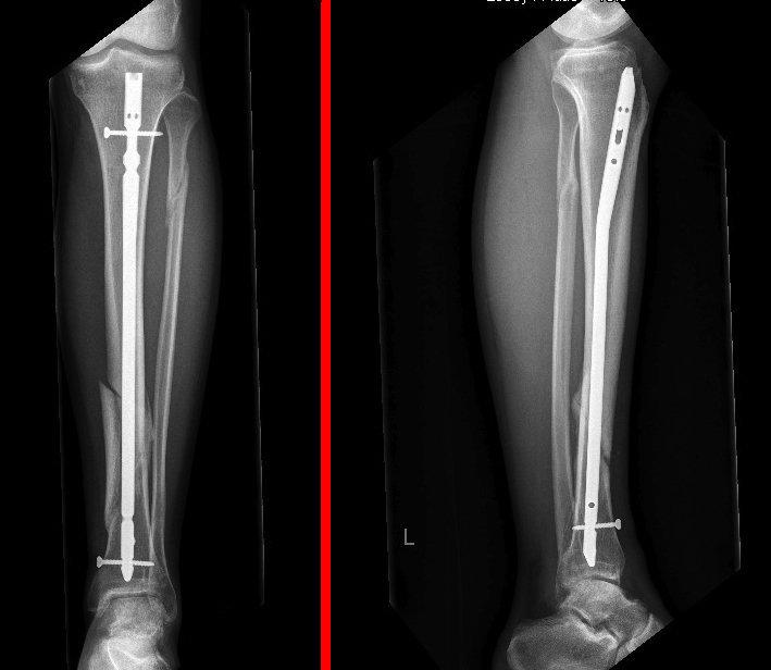 dinamización, clavo, fractura intramedular, tibia, intervención, cirugía, dolor