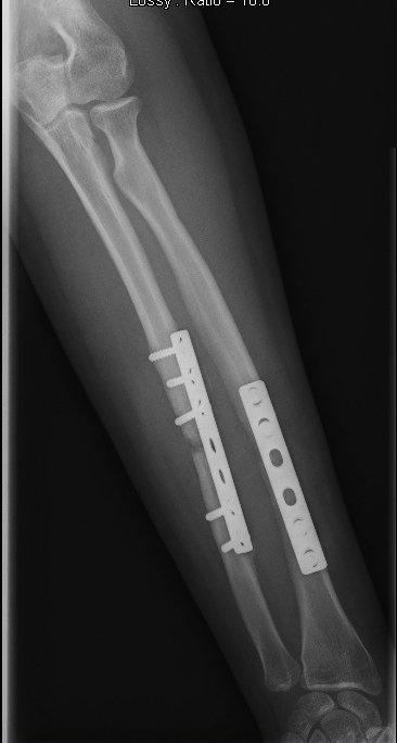 placa, tornillos, intervención, quirúrgica, fractura, cúbito, antebrazo, dolor