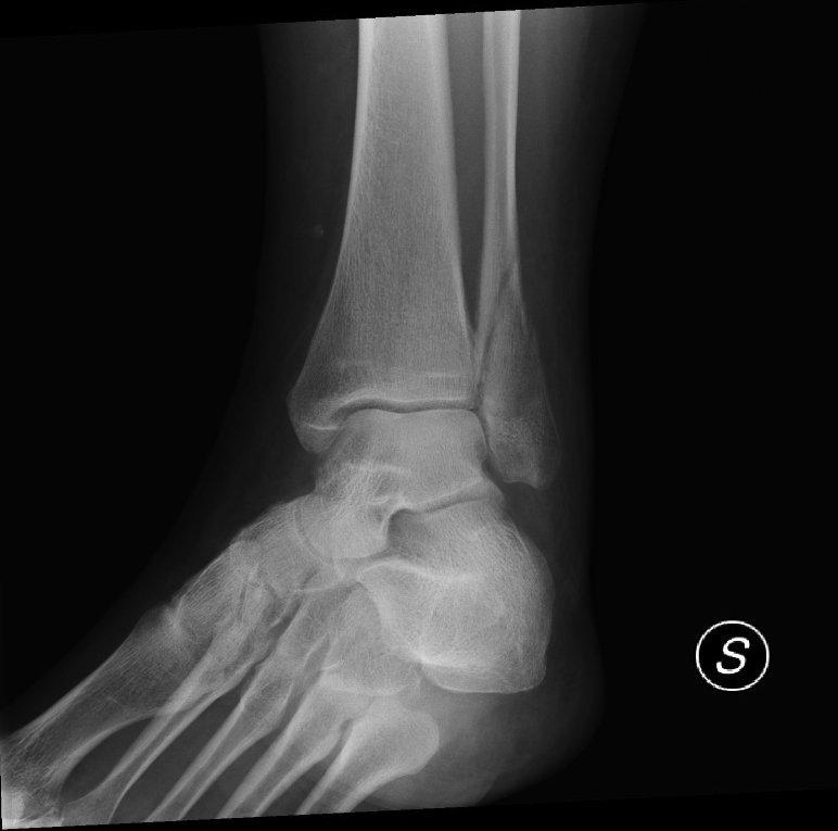 Radiografía de una fractura del maléolo peroneo