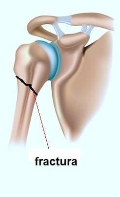 fractura, lesión, húmero, proximal, brazo, dolor