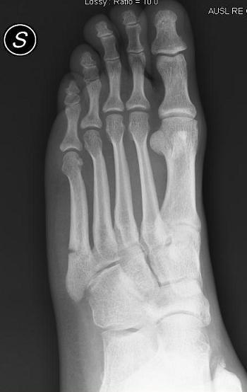 fractura del quinto metatarsiano del pie tratamiento y