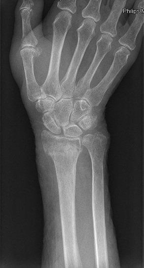 radiografía, estiloides, radio, cúbito, fractura, lesión, dolor