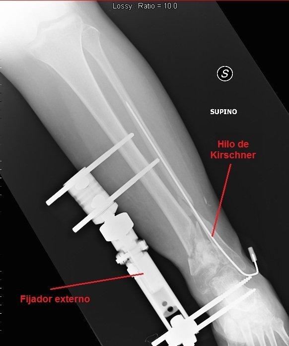 Fractura del maleolo interno tibia tobillo tratamiento for Esterno o externo