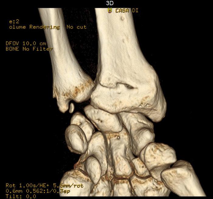 tac, muñeca, fractura, lesión, colles, otoño, la mano, la espalda, la extensión