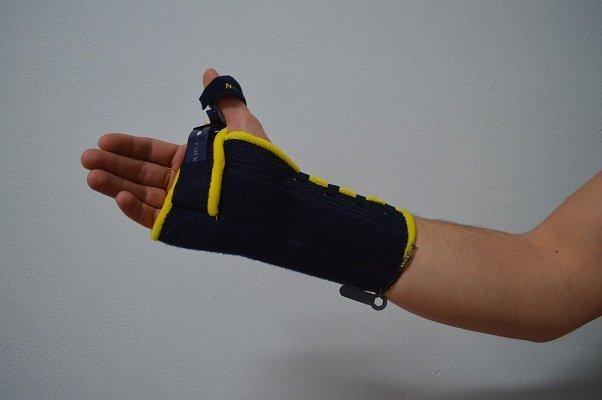 tutor, yeso, fractura, inmovilización de la muñeca, el dolor, la curación, la recuperación, la fisioterapia