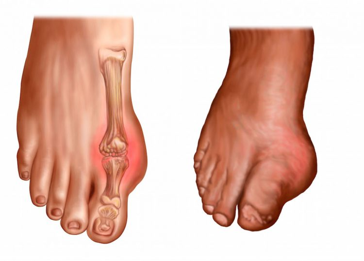 gota e hinchazón del pie