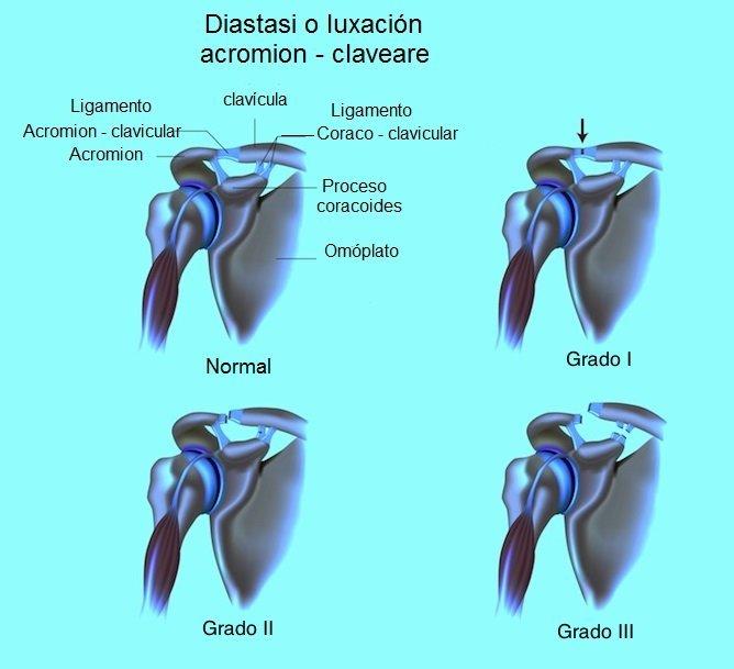 diástasis, luxación, acromioclavicular, acromion, clavícula, hombro