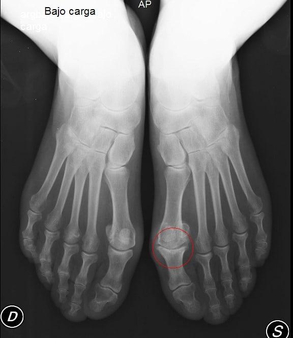 Hallux rigidus, dolor, restricción de movimiento, hueso metatarsiano, la osteoartritis