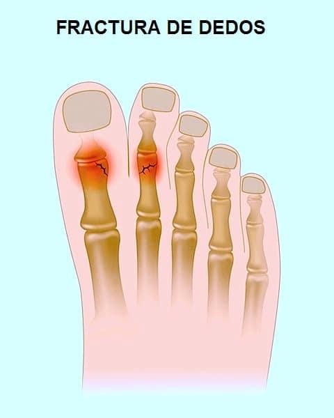 fractura, dedos, pie, dolor, huesos, soporte, carga