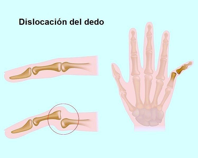 esguince de dedo dislocación, la mano, el dolor, la inflamación, lesión, cirugía, inestable
