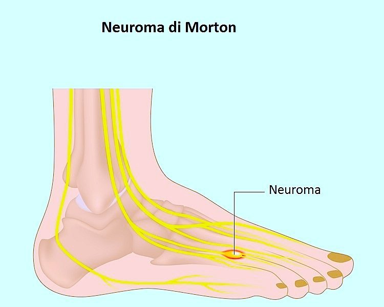 Neuroma de Morton, pies, dedos, tercero, cuarto, el dolor, la neuralgia, la quema, la intervención