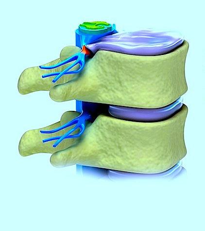 hernia, la compresión de disco, nervio, lumbar, dolor, hormigueo, ardor