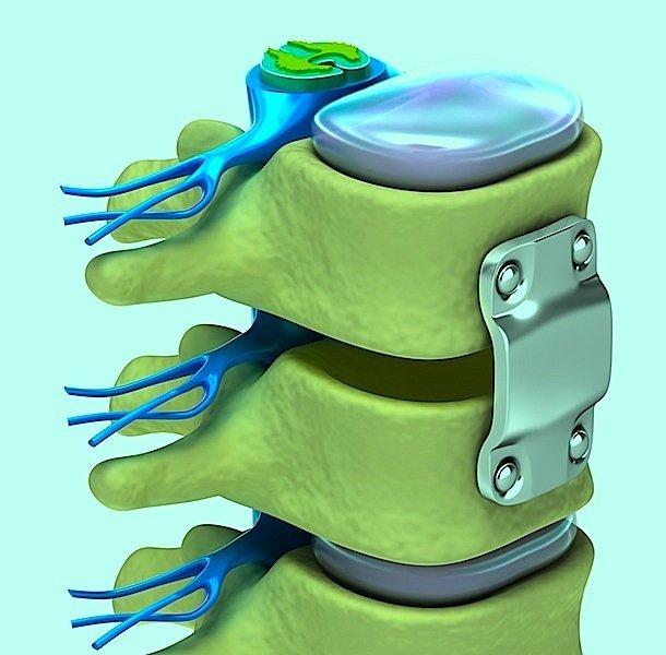 Fractura de columna vertebral lumbar, L1, L2, por accidente