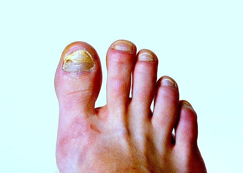 hongos, dedo del pie, pie, infección, dolor, dedos, raspar