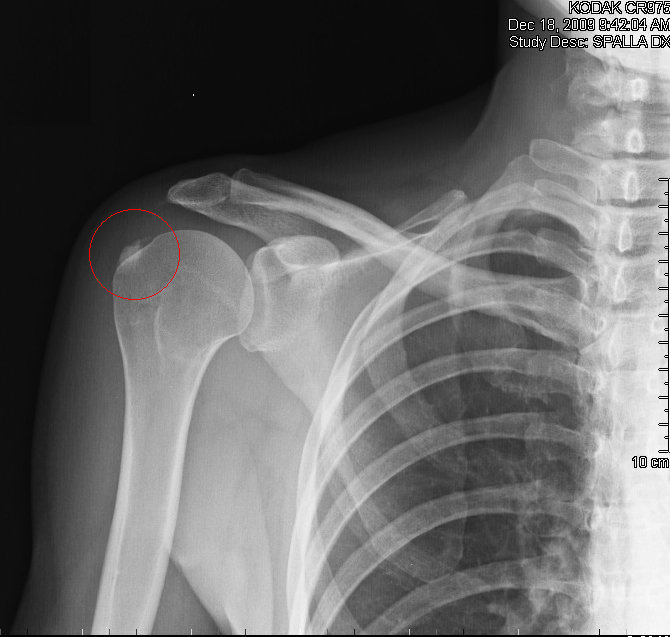 calcificación, tendinitis, hombro, calcificada, dolor, inflamación