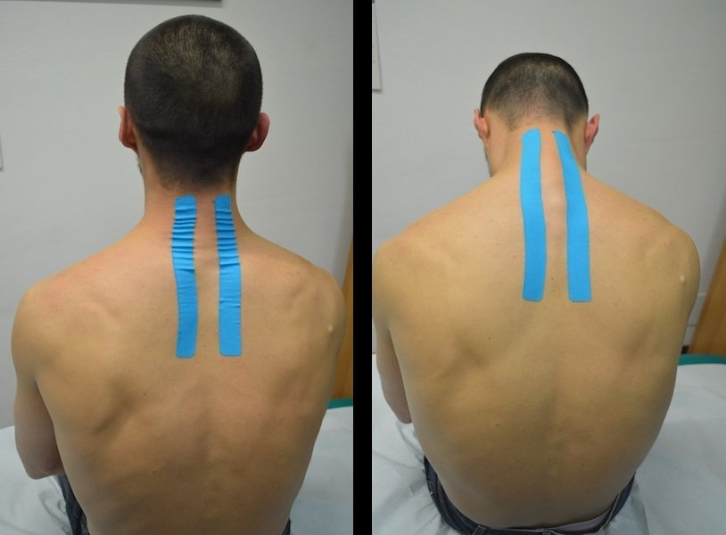 Kinesio, tape, cuello, cervical, vendas, parches