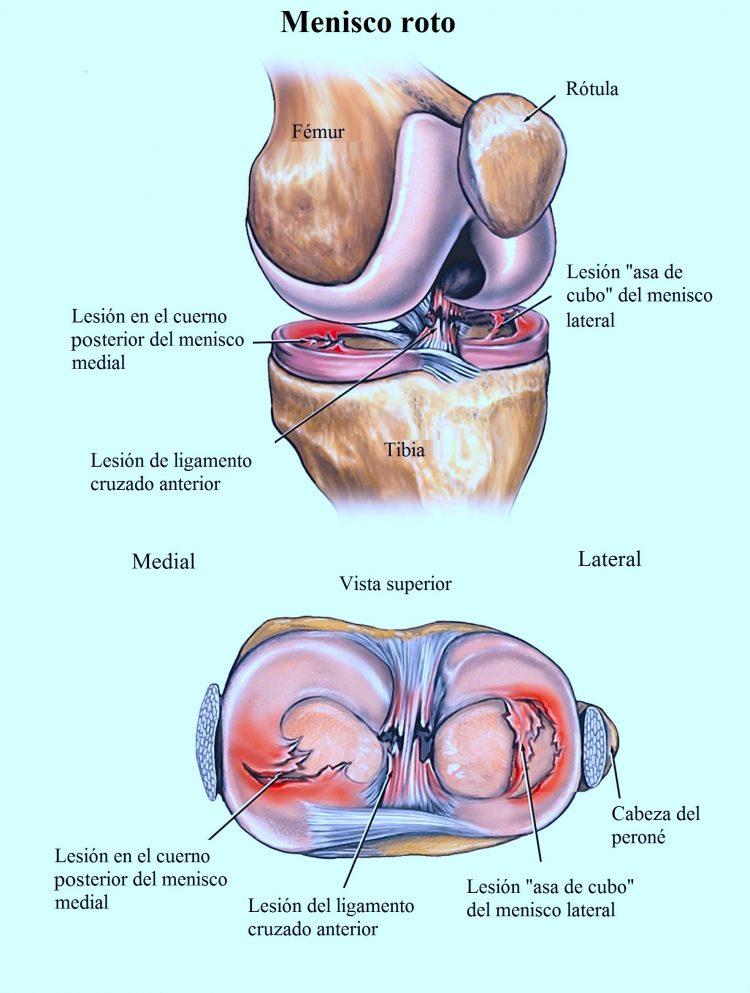 Dolor en un lateral de la rodilla
