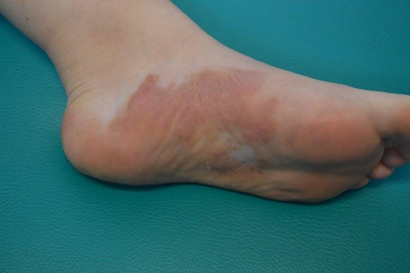 psoriasis, corsitone, trato, irritación, inflamación, reacción, patología, autoimmune, piel
