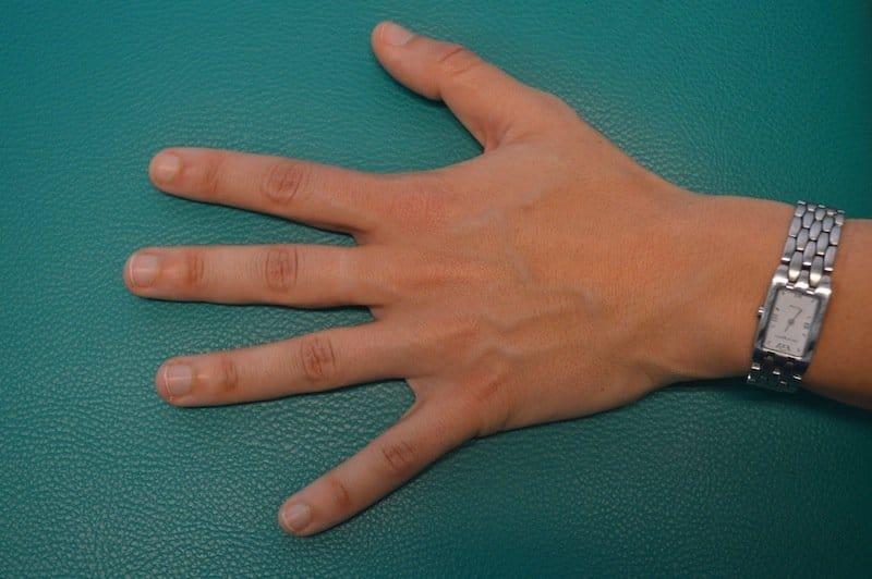 dedo menique de la mano izquierda dormido